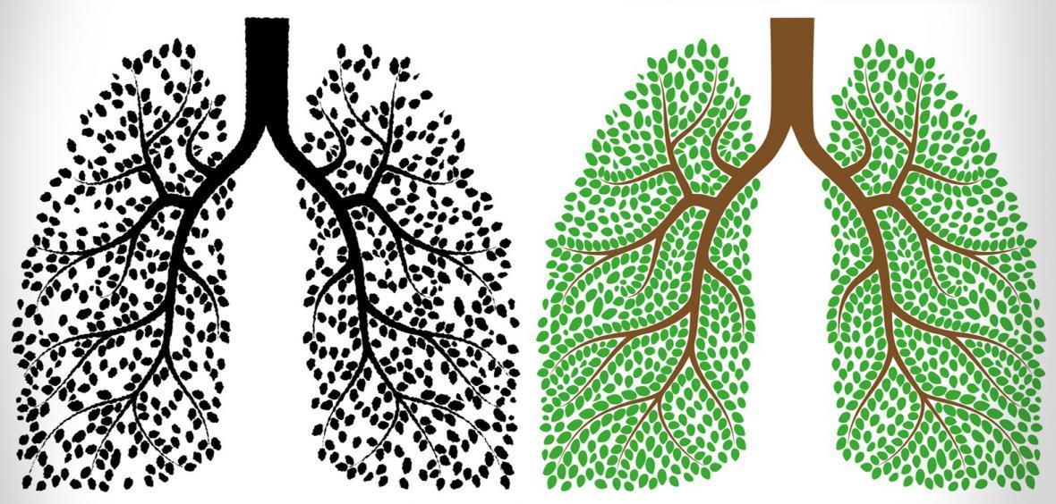14 ماده غذایی برای پاکسازی ریه های شما