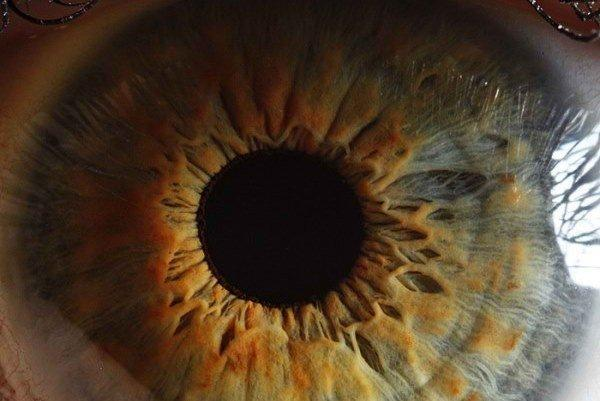 بیماری های چشمی با راهکارهای فناورانه درمان می شود